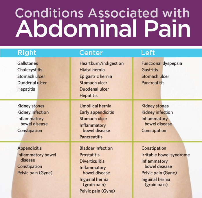 abdominal pain location diagram