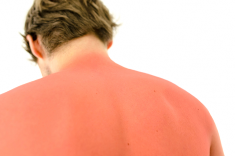 Learn About The Dangers of Sun Poisoning