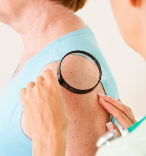 dermatologist examines freckles