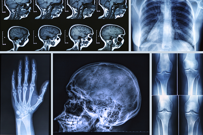 Diagnostic Imaging Technology: X-Ray, CT, and MRI Scans