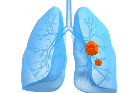Lung Cancer Symptoms: When it's More Than a Cough