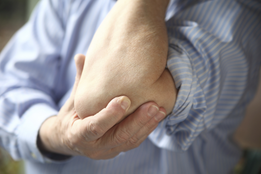 How to treat arthritis pain at home