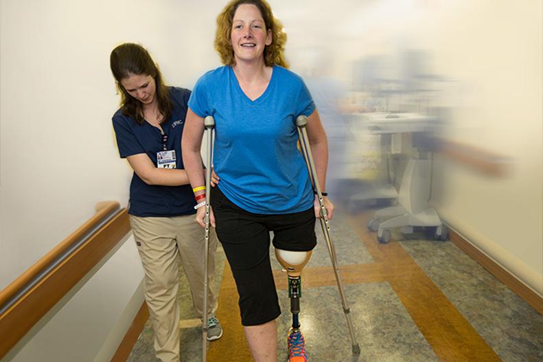 prosthetic leg upmc