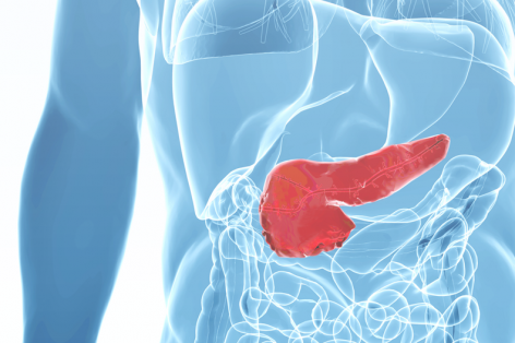 Infographic: Pancreatic Cancer
