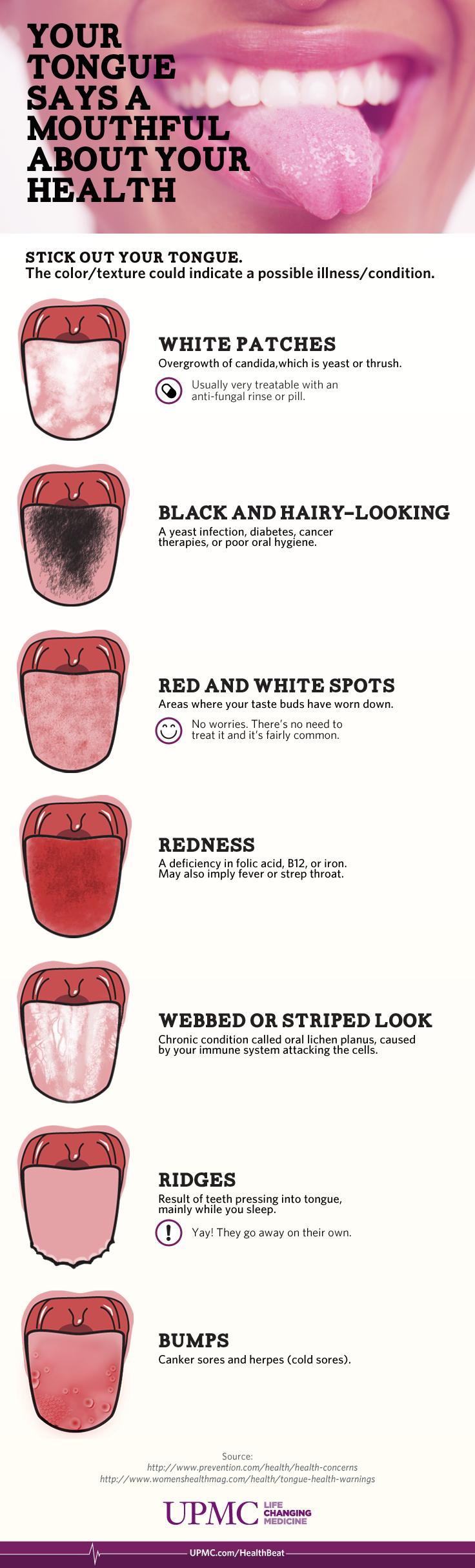 Strep throat white tongue — pic 2