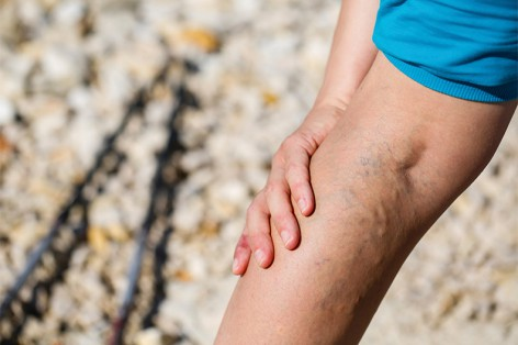 Treatment Options for Varicose Veins