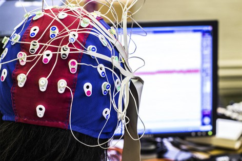 Brain Mapping Pinpoints Source of Epileptic Seizures