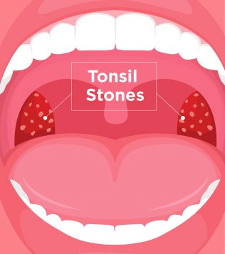 What Are Tonsil Stones (Tonsilloliths) | Symptoms & Treatment | UPMC