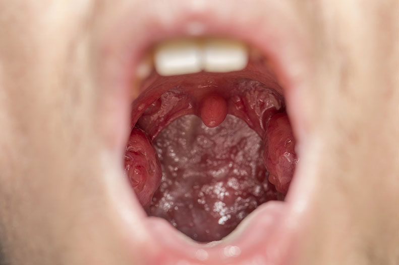 What Are Tonsil Stones (Tonsilloliths) | Symptoms