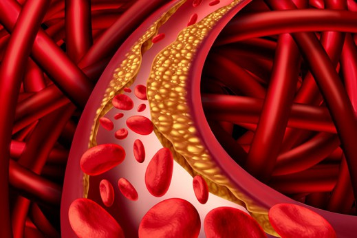 What Is Atherosclerosis?