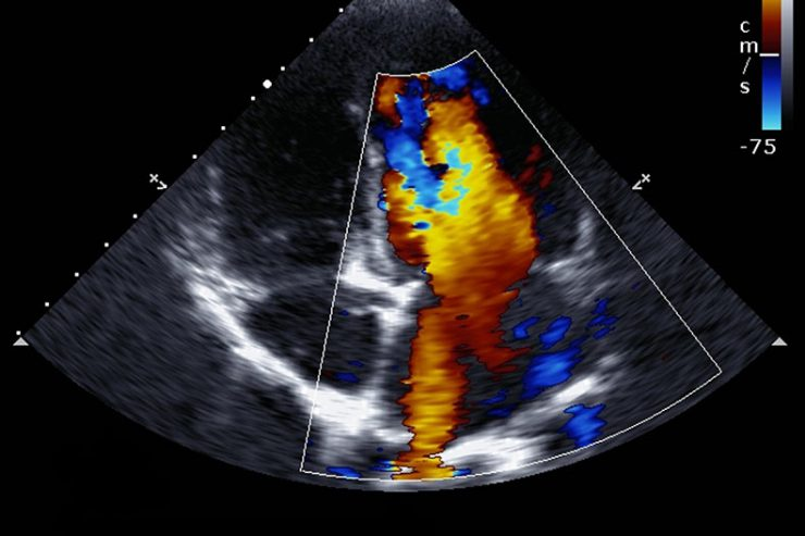 Having an Echocardiogram: What You Need to Know | UPMC HealthBeat