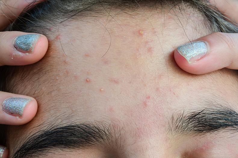 Pimple Patch Can Aspirin Aid Acne Upmc Healthbeat