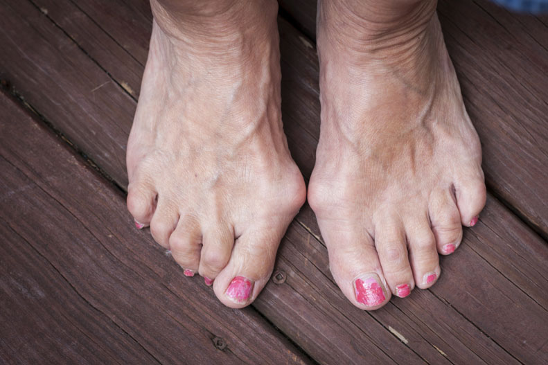Does Wearing Small Shoes Cause Bunions