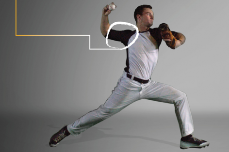 Common Baseball Pitching Injuries and Where They Strike