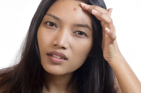 Pimple Popping At Home: Take a Pass