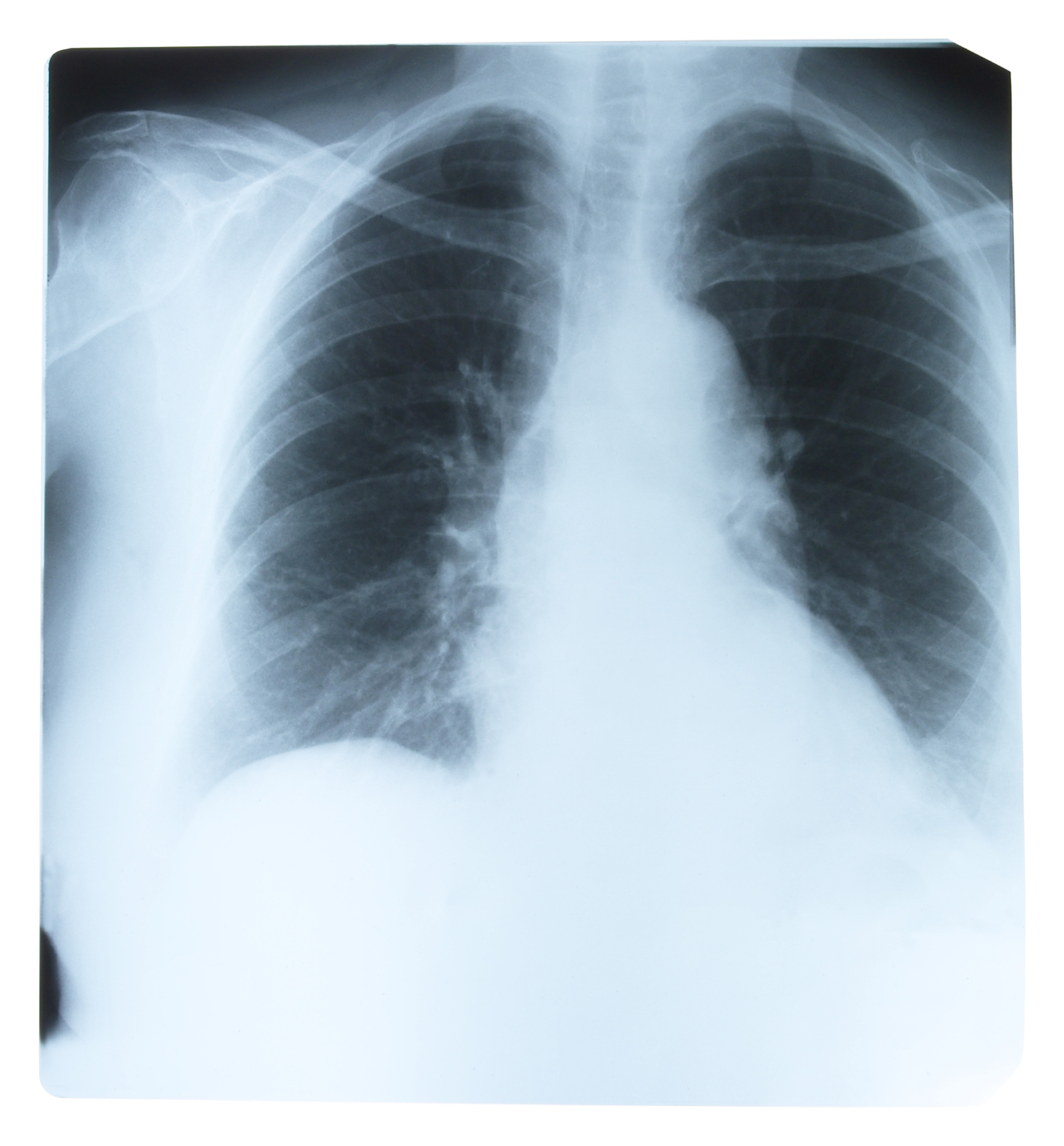 Learn about pulmonology topics