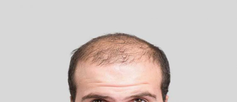 Learn more about the causes of male pattern baldness