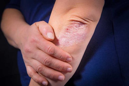 Psoraisis can cause irritation to the skin