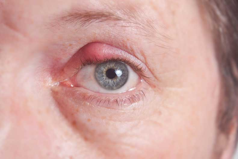 Learn more about treating eye styes