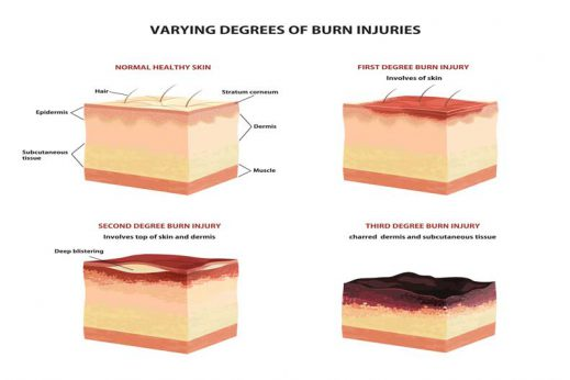 Learn more about the degree of burns