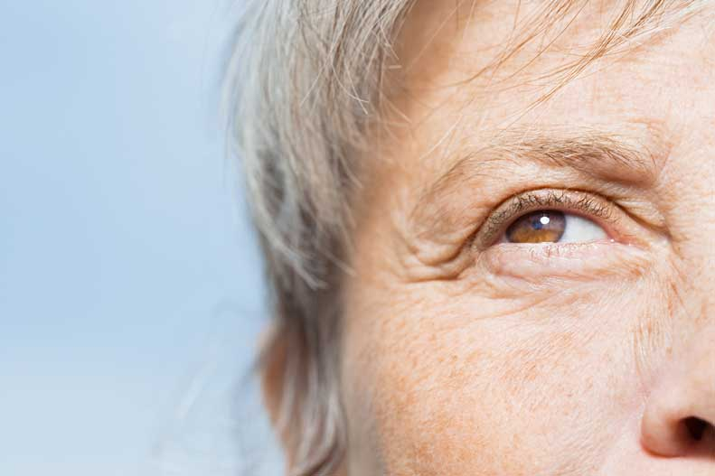 Learn more about the causes of wrinkles