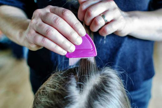 Learn about how you can treat head lice.