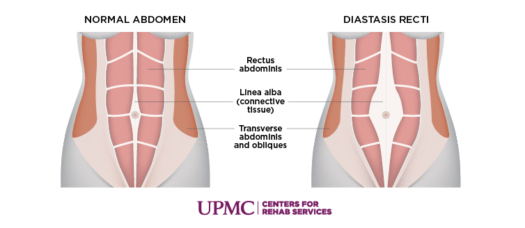 Learn more about diastis recti
