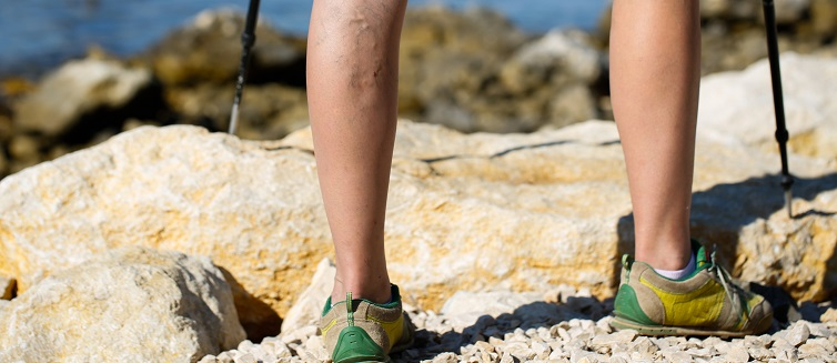 Learn more about varicose veins