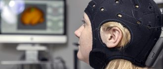 Learn about brain stimulation research for stroke patients