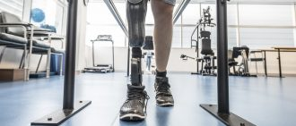 Man with prosthetic leg